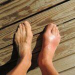 Penyakit Gout Gejala Penyebab Pengobatan