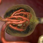 Hematuria Penyebab Gejala Pengobatan 2