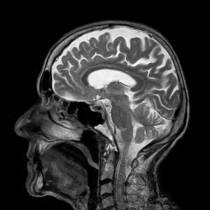 penyakit radang otak